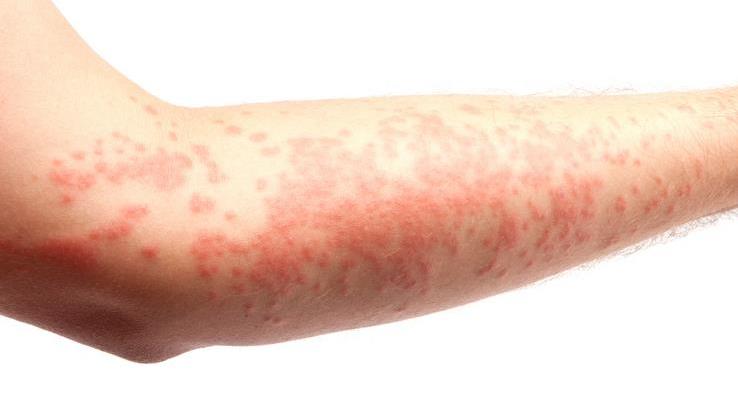 Аллергический дерматит у взрослых признаки