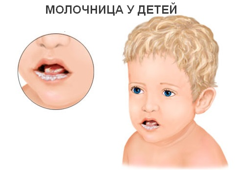 Кандидоз у детей во рту