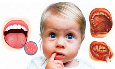 Острый кандидоз у детей во рту