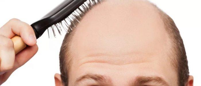 Выпадение волос при дерматомикозе
